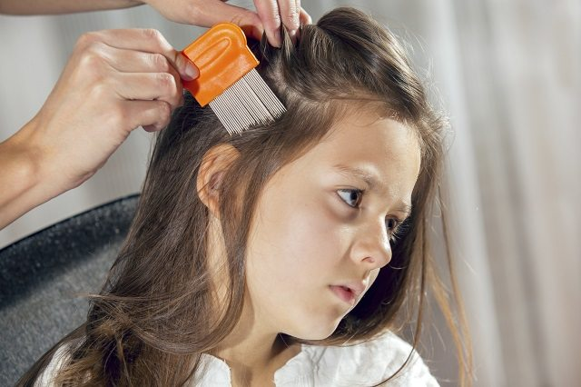 headl ice, removing head lice, tips for removing head lice, how to get rid of head lice,