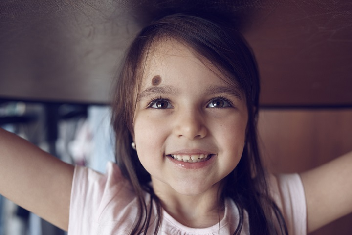 cute little girl looking up, smiling and having playful attitude.brown hair and hazel eyes.happiness and enjoyment feelings. birthmarks